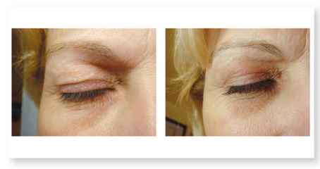 blepharoplastie-non-chirurgicale